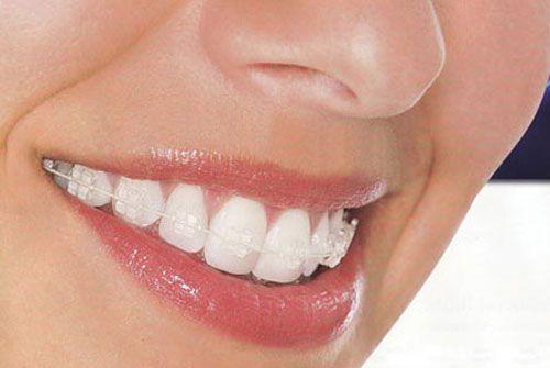 Kết quả hình ảnh cho Bởi vì răng sứ được coi là cốt lõi