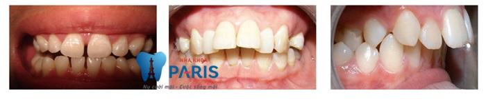 Niềng răng mắc cài trong suốt là loại nào, có phù hợp với bạn?