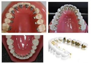 Niềng răng mặt trong có hiệu quả không so với mặt ngoài?