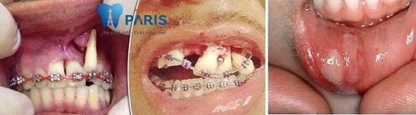 3 cách tự niềng răng tại nhà phổ biến nhất hiện nay 2