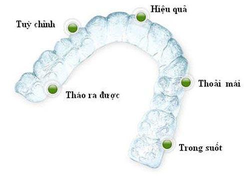 Niềng răng trong suốt ở đâu tốt tại Việt Nam? 4
