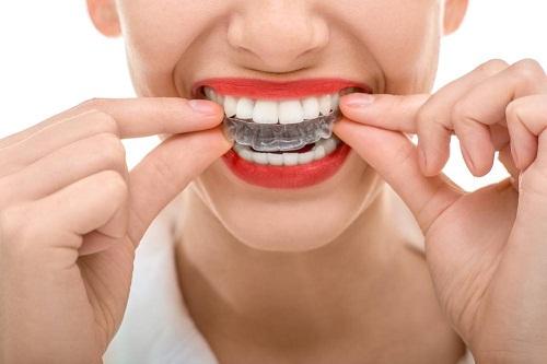 Niềng răng trong suốt và 5 vấn đề quan trọng bạn cần lưu ý 2