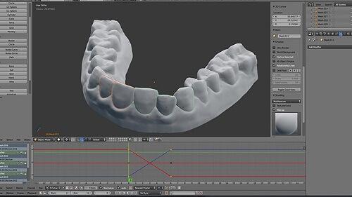 Niềng răng trong suốt và 5 vấn đề quan trọng bạn cần lưu ý 4
