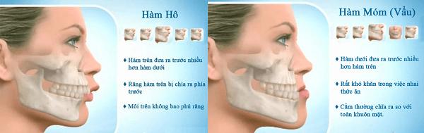 Nguyên nhân chủ yếu và cách khắc phục tình trạng răng vẩu