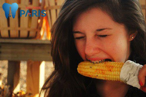 10 Kinh nghiệm niềng răng cực kì hữu ích có thể bạn chưa biết 3