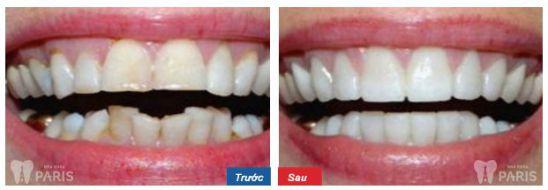 Nguyên nhân răng vẩu và các cách nắn chỉnh răng vẩu hiệu quả nhất 3