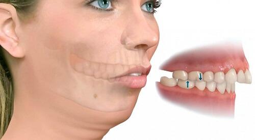 Chỉnh răng hô hàm trên đẹp, an toàn và nhanh chóng nhất 2017 1