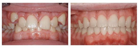 Quy trình niềng răng không mắc cài thực hiện như thế nào? 4