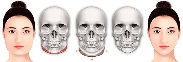 Phẫu thuật hàm mặt giúp cải thiện khuyết điểm an toàn và nhanh chóng 2