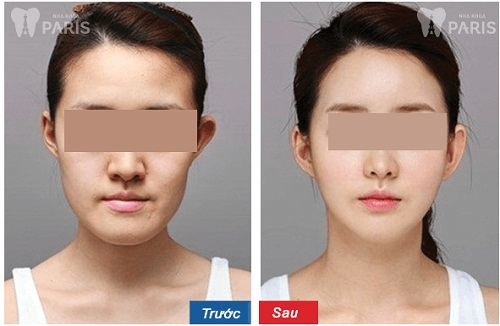 Phẫu thuật hàm mặt giúp cải thiện khuyết điểm an toàn và nhanh chóng 3