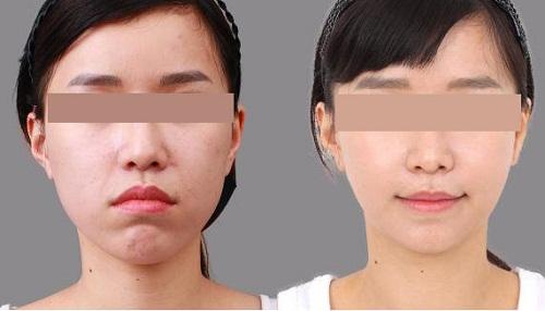 Phẫu thuật hàm mặt giúp cải thiện khuyết điểm an toàn và nhanh chóng 4
