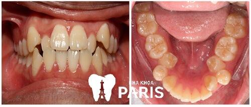 Chỉnh răng mọc lệch bao nhiêu tiền và nên dùng phương pháp nào? 1