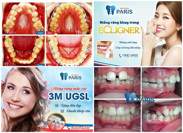 Chi phí niềng răng mọc lệch hết bao nhiêu tiền hiện nay? 7