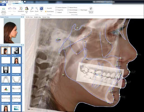 Chi phí niềng răng eCligner giá bao nhiêu tiền hiện nay? Bảng giá 2017 3
