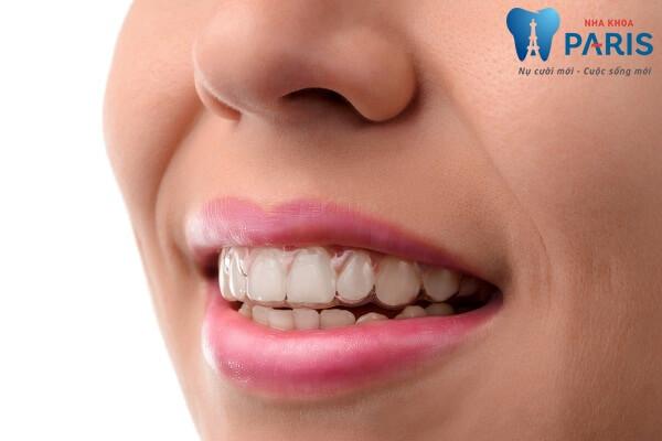 Chi phí niềng răng mọc lệch hết bao nhiêu tiền hiện nay? 2