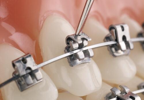Chi phí niềng răng mọc lệch hết bao nhiêu tiền hiện nay? 1