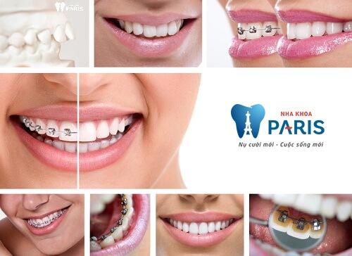 Địa chỉ niềng răng ở đâu tốt và uy tín nhất hiện nay? 1