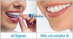 Niềng răng trong suốt giá bao nhiêu – Bảng giá có ƯU ĐÃI