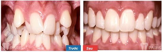 Giới thiệu DV niềng răng tại TPHCM – công nghệ đến từ nước Pháp 5