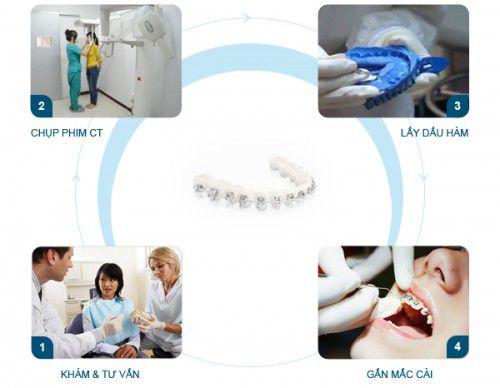 Quy trình niềng răng theo từng giai đoạn có các bước như thế nào? 1