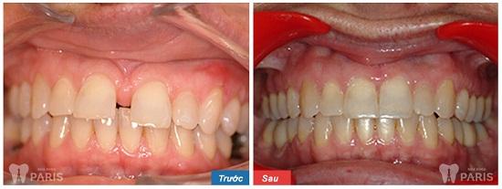 Nguyên nhân gây răng thưa và cách khắc phục hiệu quả nhất 2017 3