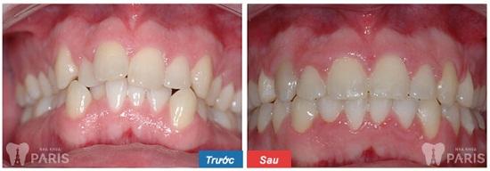 Niềng răng ở đâu tốt tại Vinh xóa bỏ vấn đề thời gian & đau nhức? 5