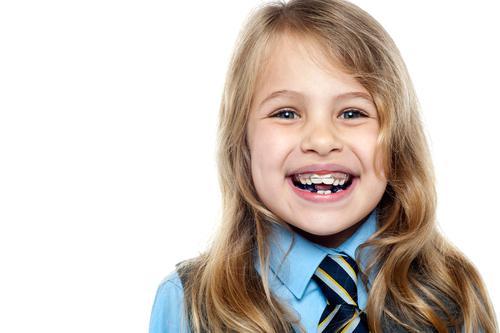 Giá niềng răng trẻ em có rẻ hơn của người lớn không? 1