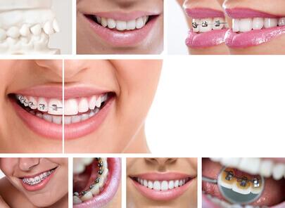 Nẹp răng giá bao nhiêu là hợp lí? Bảng giá ƯU ĐÃI năm 2017 2