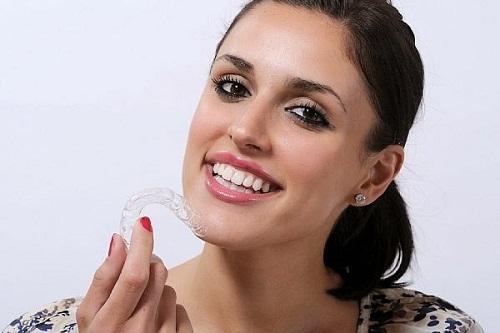 Niềng răng eCligner có đắt không? Giá cụ thể là bao nhiêu? 1