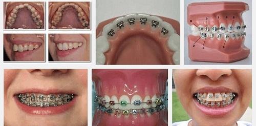 Nẹp răng giá bao nhiêu là hợp lí? Bảng giá ƯU ĐÃI năm 2017 1