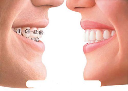 Giới thiệu DV niềng răng tại TPHCM – công nghệ đến từ nước Pháp 1