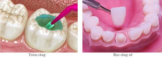 Nguyên nhân gây răng thưa và cách khắc phục hiệu quả nhất 2017 2