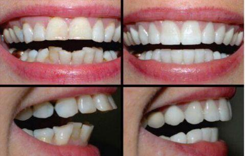 Cách chữa răng vẩu (hô) tại nhà đơn giản hiệu quả chỉ sau 1 tuần 2