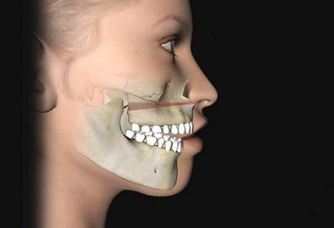 Cách chữa răng vẩu (hô) tại nhà đơn giản hiệu quả chỉ sau 1 tuần 3