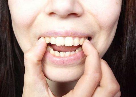 Cách chữa răng vẩu (hô) tại nhà đơn giản hiệu quả chỉ sau 1 tuần 4