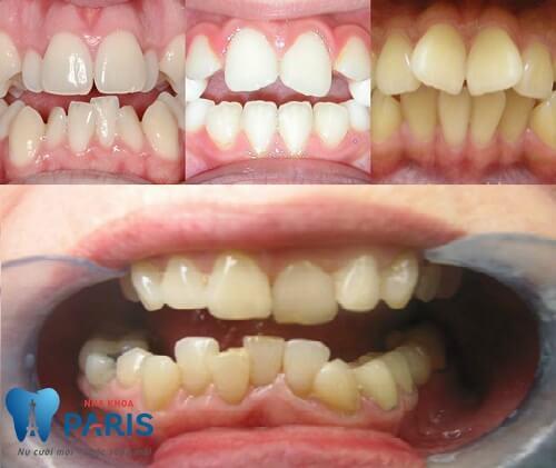 Cách chỉnh hàm răng khấp khểnh chính thống được khuyên dùng 1
