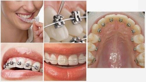 Cách chỉnh hàm răng khấp khểnh chính thống được khuyên dùng 2
