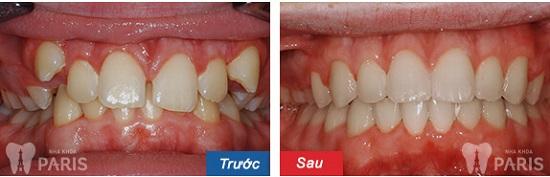 Những dấu hiệu mọc răng khểnh dễ nhận biết - Chuyên gia tư vấn 2