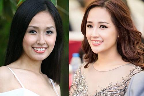 Răng khểnh xấu làm sao cho đẹp – Cách tạo răng khểnh NEW 2017 4