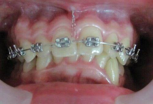 đánh lún răng là gì