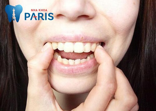 niềng răng tại nhà có hiệu quả không