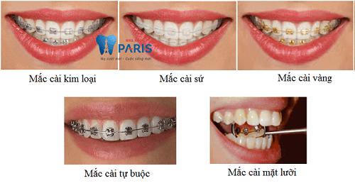 Niềng răng khểnh như thế nào để thuận lợi & hiệu quả cao? 3