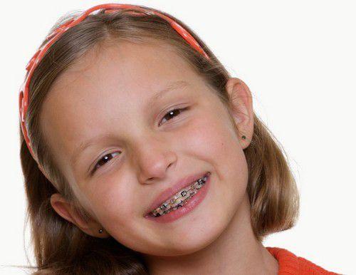 Niềng răng khểnh như thế nào để thuận lợi & hiệu quả cao? 2