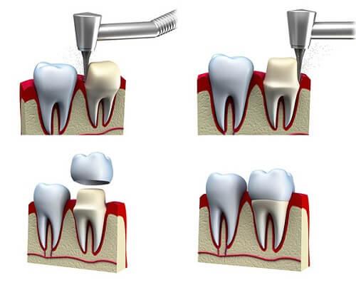 Cách sửa răng khểnh được chuyên gia khuyên dùng năm 2017 2