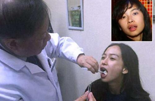 Hành trình lột xác của Angela Baby - xinh đẹp chỉ nhờ niềng răng! 2