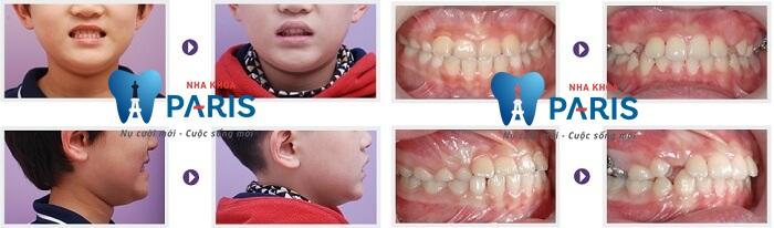 Răng khểnh có di truyền không, phòng tránh và điều trị thế nào? 6