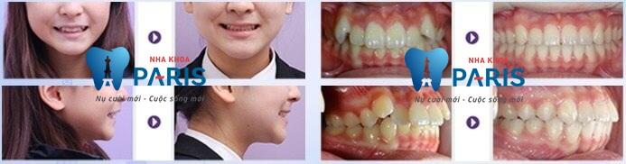 Răng khểnh có di truyền không, phòng tránh và điều trị thế nào? 5