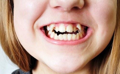 Răng khểnh có di truyền không, phòng tránh và điều trị thế nào? 1