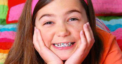Răng khểnh có di truyền không, phòng tránh và điều trị thế nào? 4
