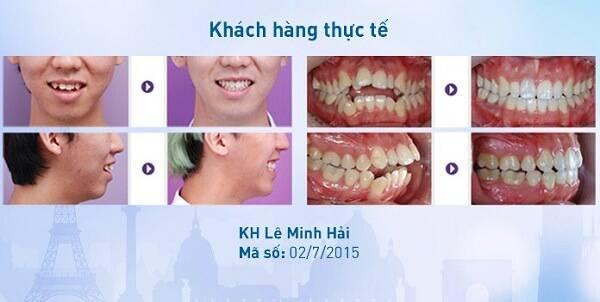 Niềng răng bị hóp má? Sự thật có như bạn đang nghĩ? 7